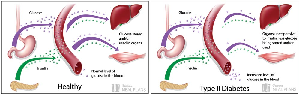 Healthy glucose compared to type 2 diabetic glucose