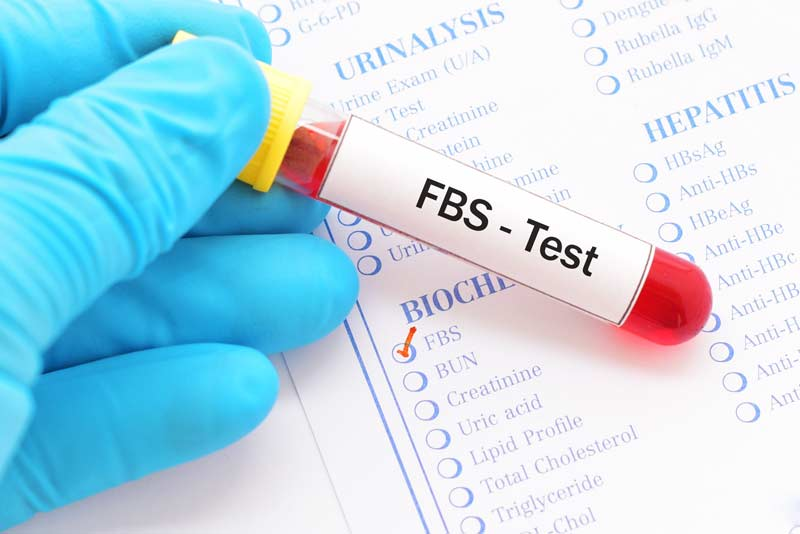 Fasting Blood Sugar Test