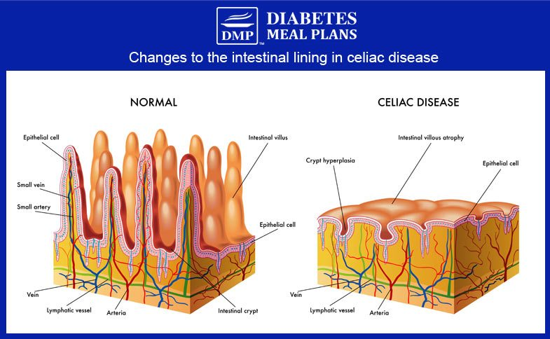 The small intestine in celiac disease | ©DMP