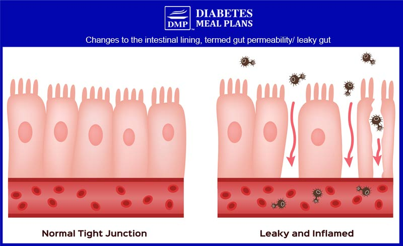 Leaky Gut/ Intestinal Permeability